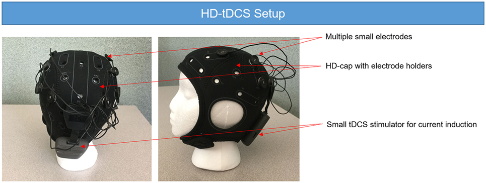 Frontiers | Anatomical Parameters of tDCS to Modulate the Motor