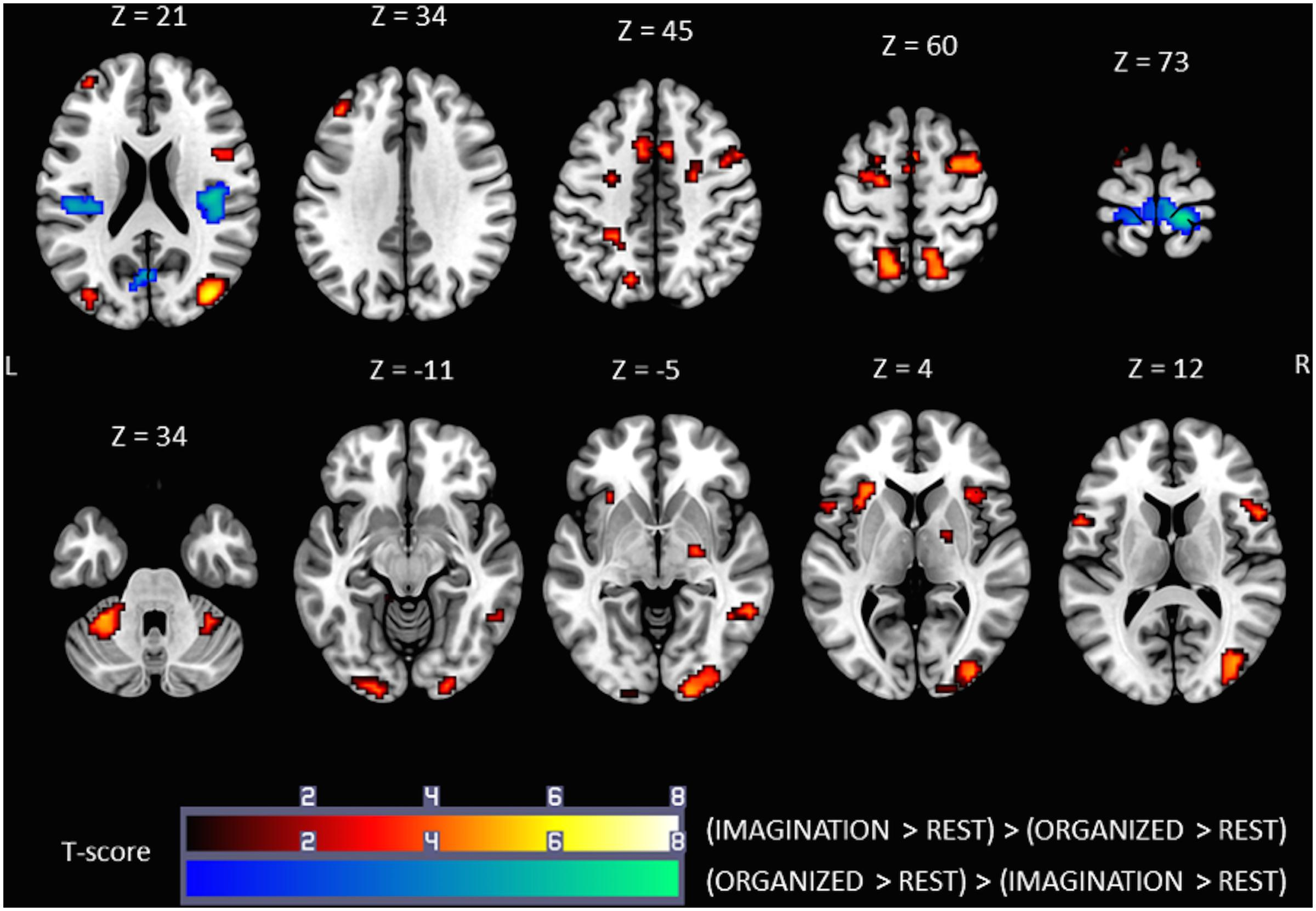 Frontiers | Brain Activity during Mental Imagery of Gait