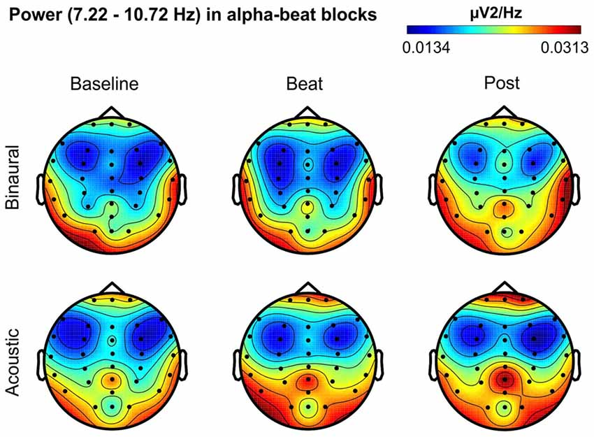 Frontiers | Binaural Beat: A Failure to Enhance EEG Power and