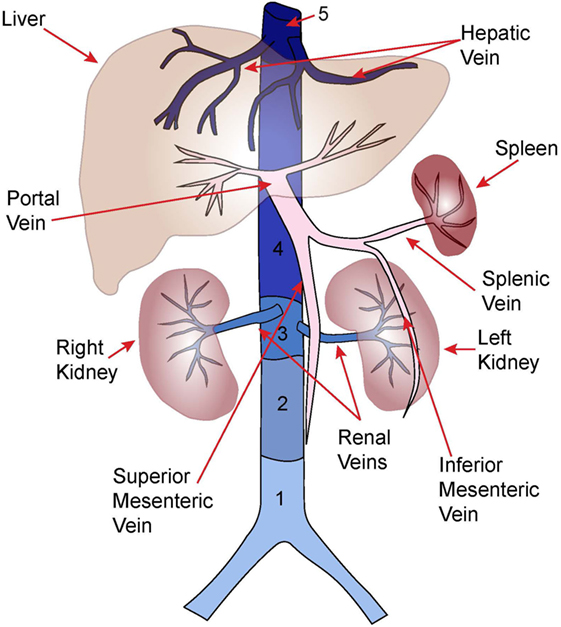 Frontiers Thrombosis Of The Abdominal Veins In Childhood Pediatrics