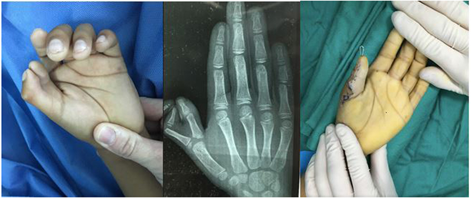 Osteotomy Right Ring Finger With Ulnar Deviation