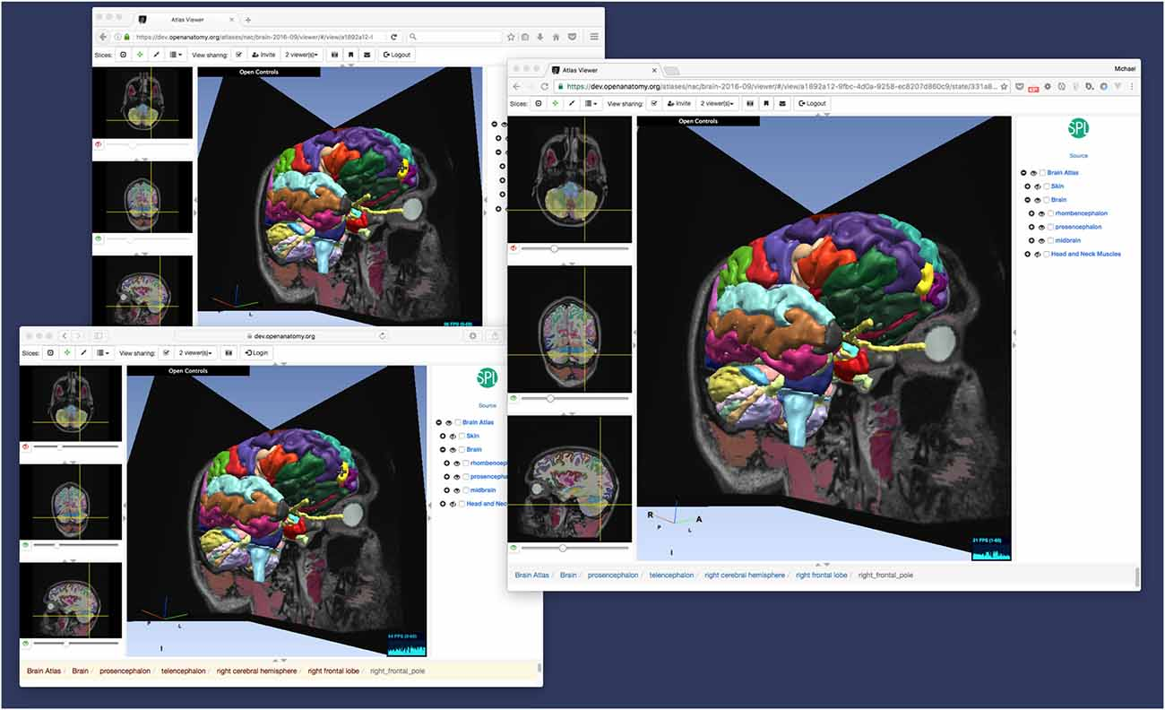 Frontiers | The Open Anatomy Browser: A Collaborative Web-Based