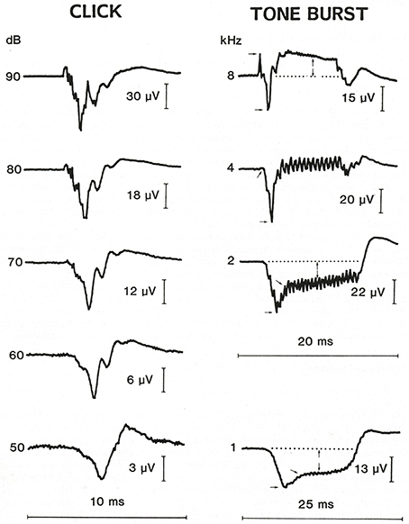 Frontiers   Tone Burst Electrocochleography for the