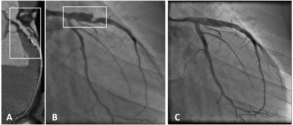 Angiography In Kawasaki Disease At  Months