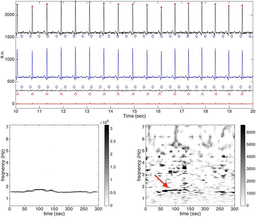 Frontiers | Extract Fetal ECG from Single-Lead Abdominal ECG