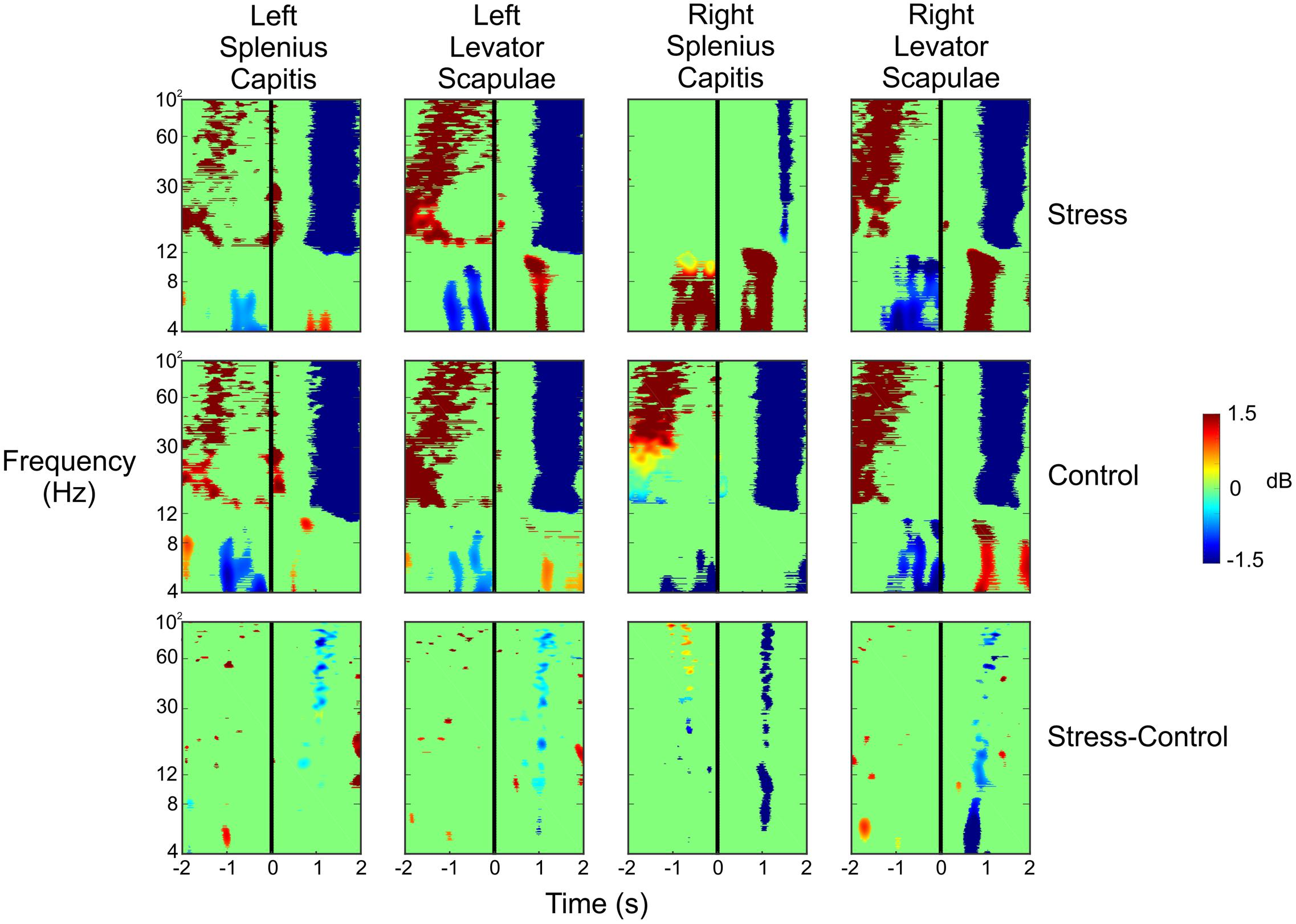 Frontiers | Independent Component Analysis and Source Localization