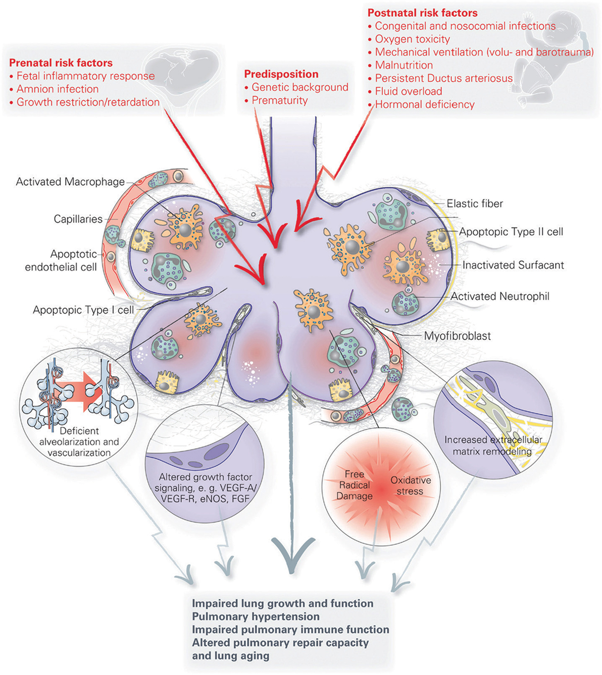 Frontiers | The Future of Bronchopulmonary Dysplasia: Emerging ... on a schematic drawing, as is to be diagram, ic schematic diagram, ups battery diagram, simple schematic diagram, a schematic circuit, layout diagram, circuit diagram, template diagram,