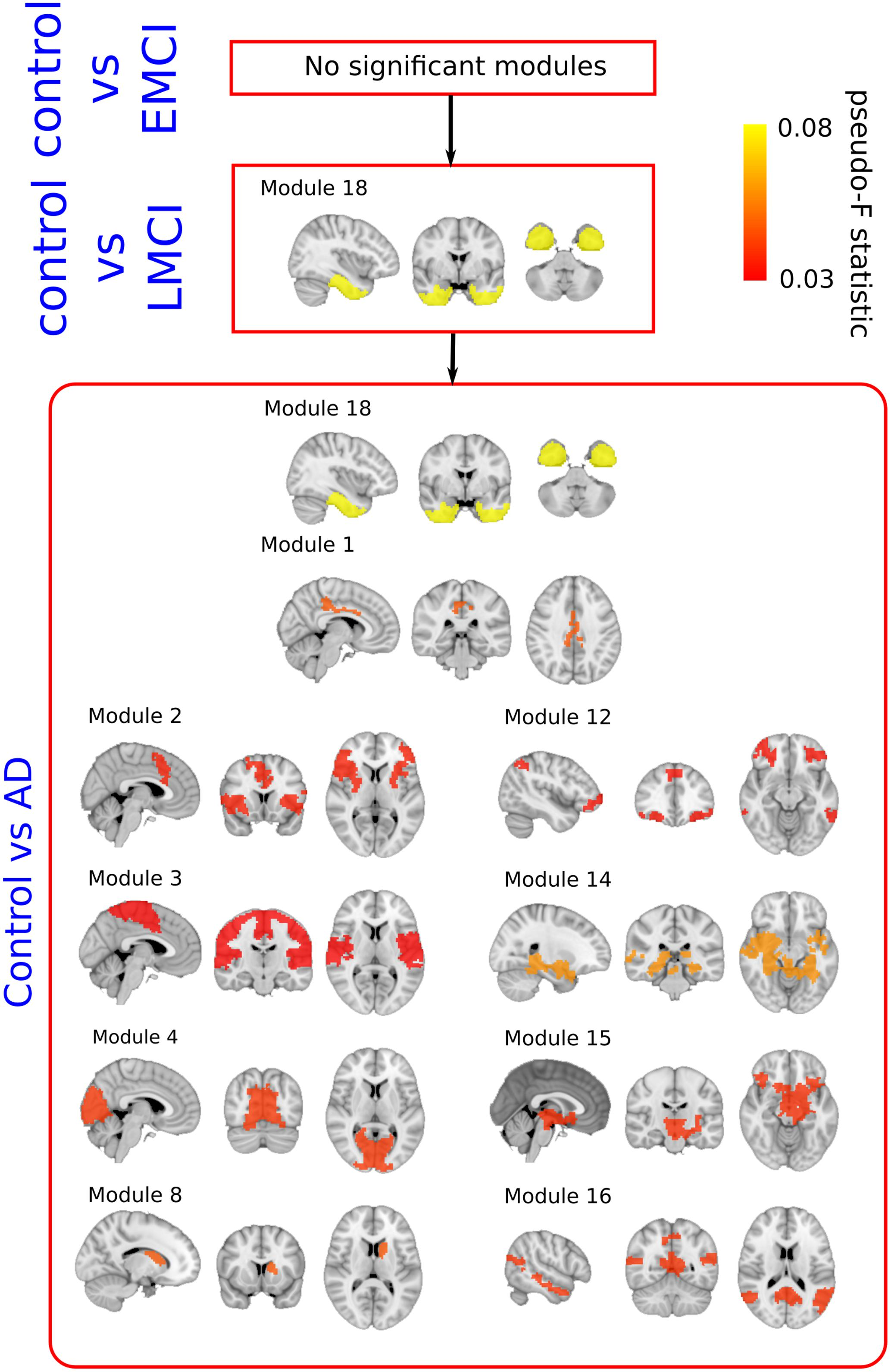 Frontiers   Group-Level Progressive Alterations in Brain