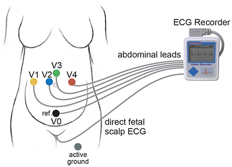 Frontiers | Efficient Fetal-Maternal ECG Signal Separation