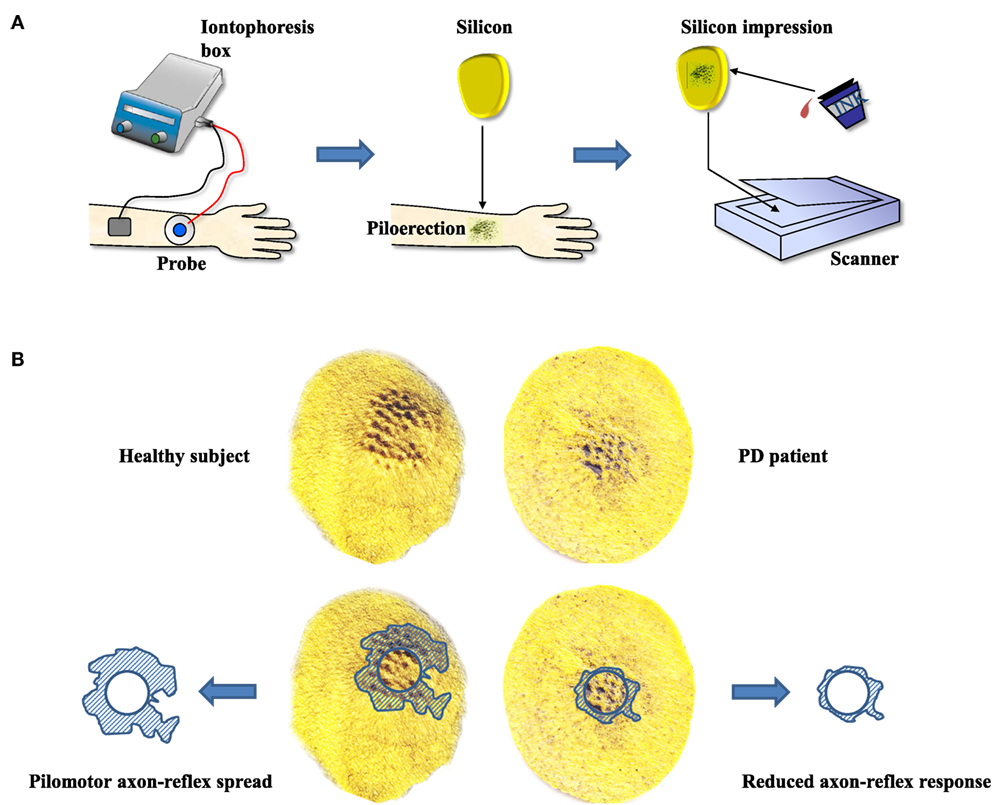 Frontiers | Cutaneous Autonomic Pilomotor Testing to Unveil