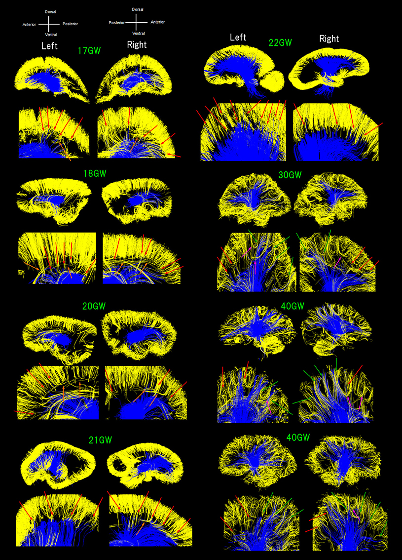 Frontiers in Neuroscience | Child and Adolescent Psychiatry