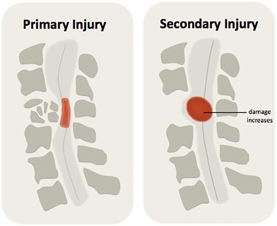 Figure 3 - There are two phases of injury after damage to the spinal cord.