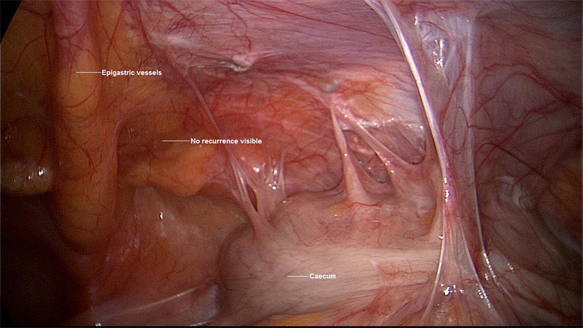 Frontiers Diagnostic Laparoscopy As Decision Tool For Re Recurrent