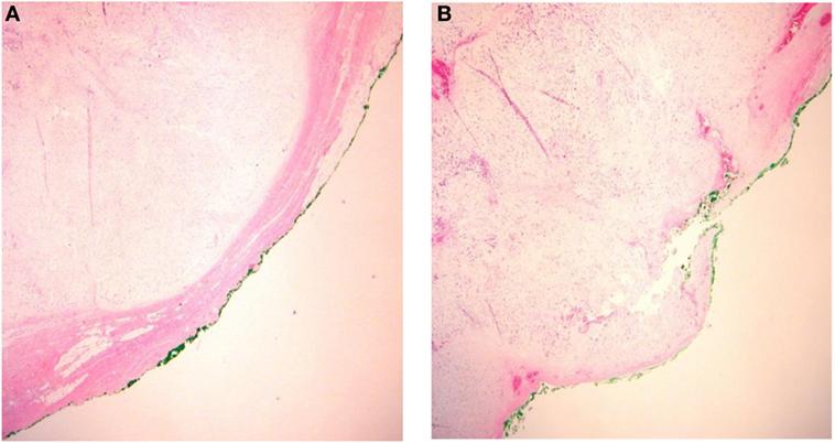 pleomorphic adenoma treatment in homeopathy