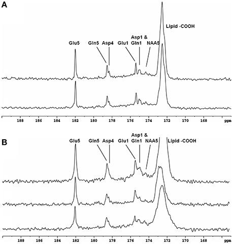 Frontiers | High Field In vivo13C Magnetic Resonance Spectroscopy of