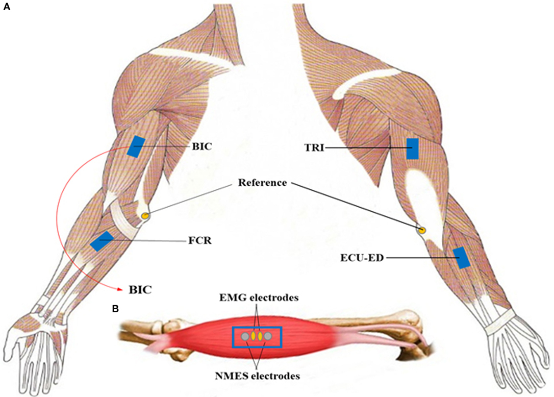 Frontiers Early Stroke Rehabilitation Of The Upper Limb Assisted