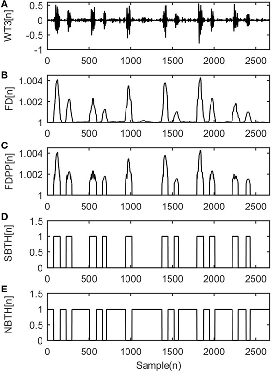 Frontiers | Fetal Heart Sounds Detection Using Wavelet Transform and