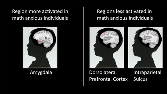 איור 3 - אזורי המוח הפעילים בזמן פתרון תרגילים במתמטיקה.
