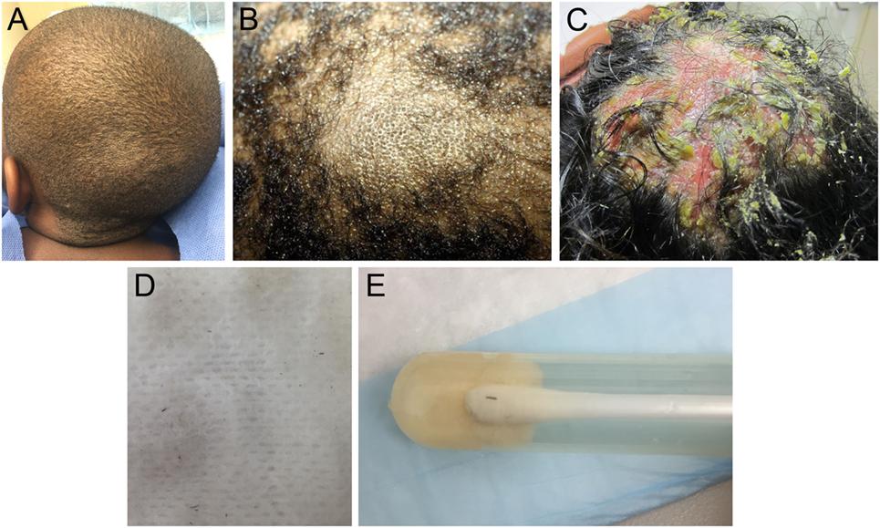 alopecia areata 1177