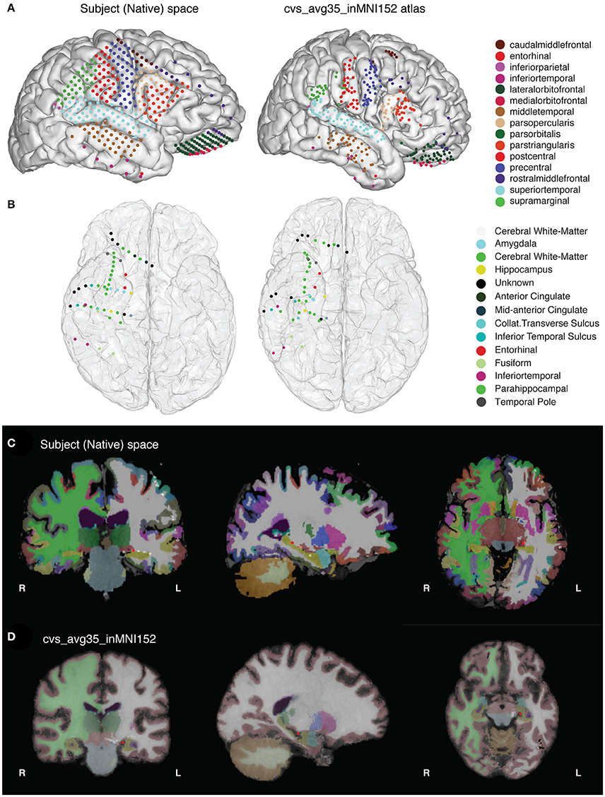 Frontiers | Semi-automated Anatomical Labeling and Inter-subject