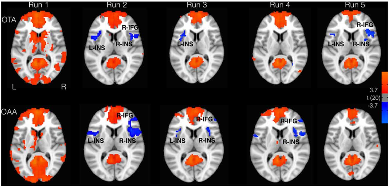 Frontiers | Effect of Continuous Touch on Brain Functional