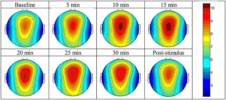 Frontiers | Brain Responses to a 6-Hz Binaural Beat: Effects