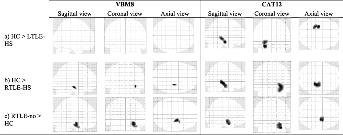 Frontiers Comparing Cat12 And Vbm8 For Detecting Brain