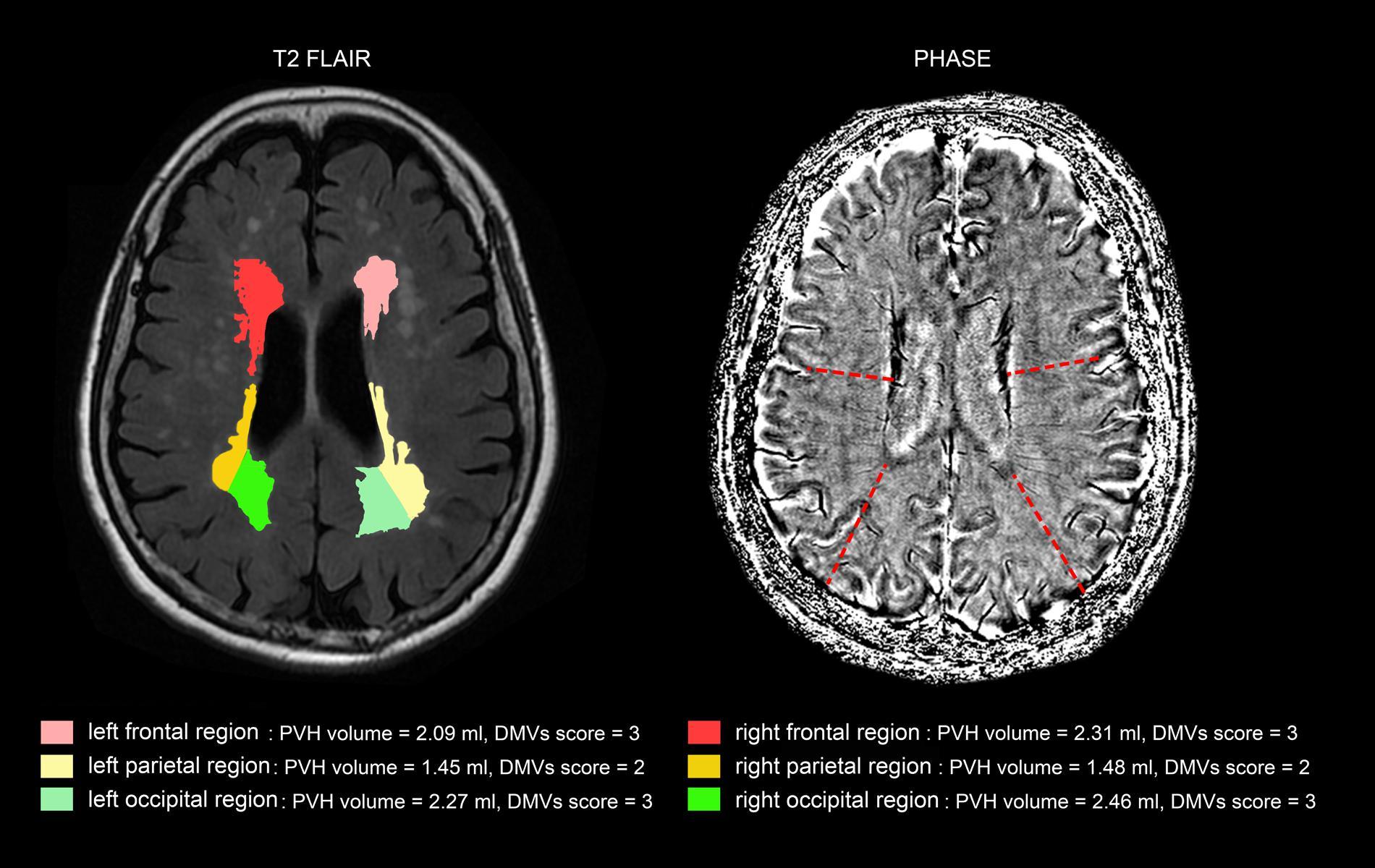 Frontiers | A Brain Region-Based Deep Medullary Veins Visual Score ...
