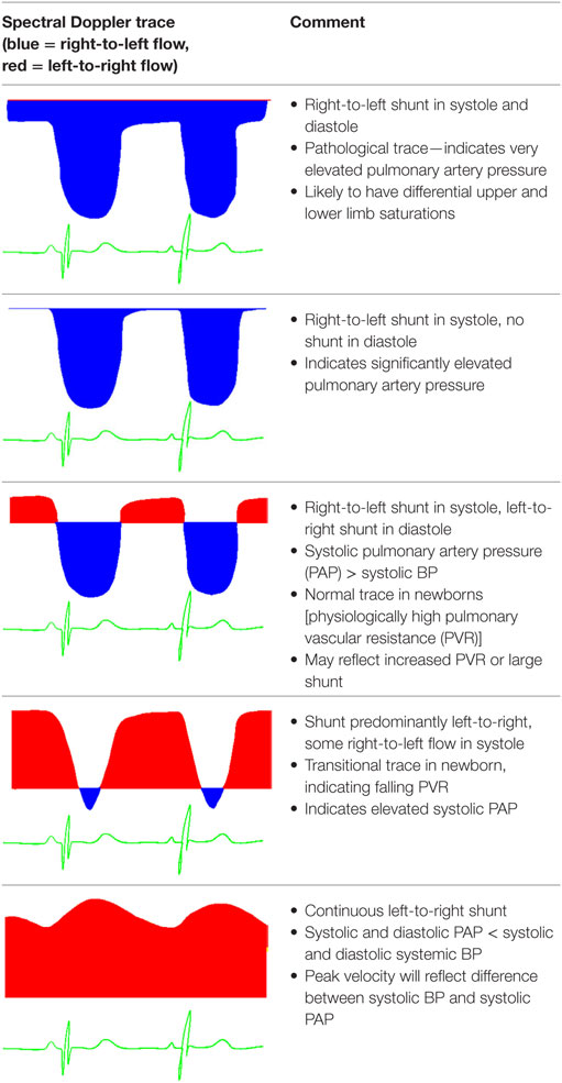 Frontiers Echocardiographic Assessment Of Pulmonary