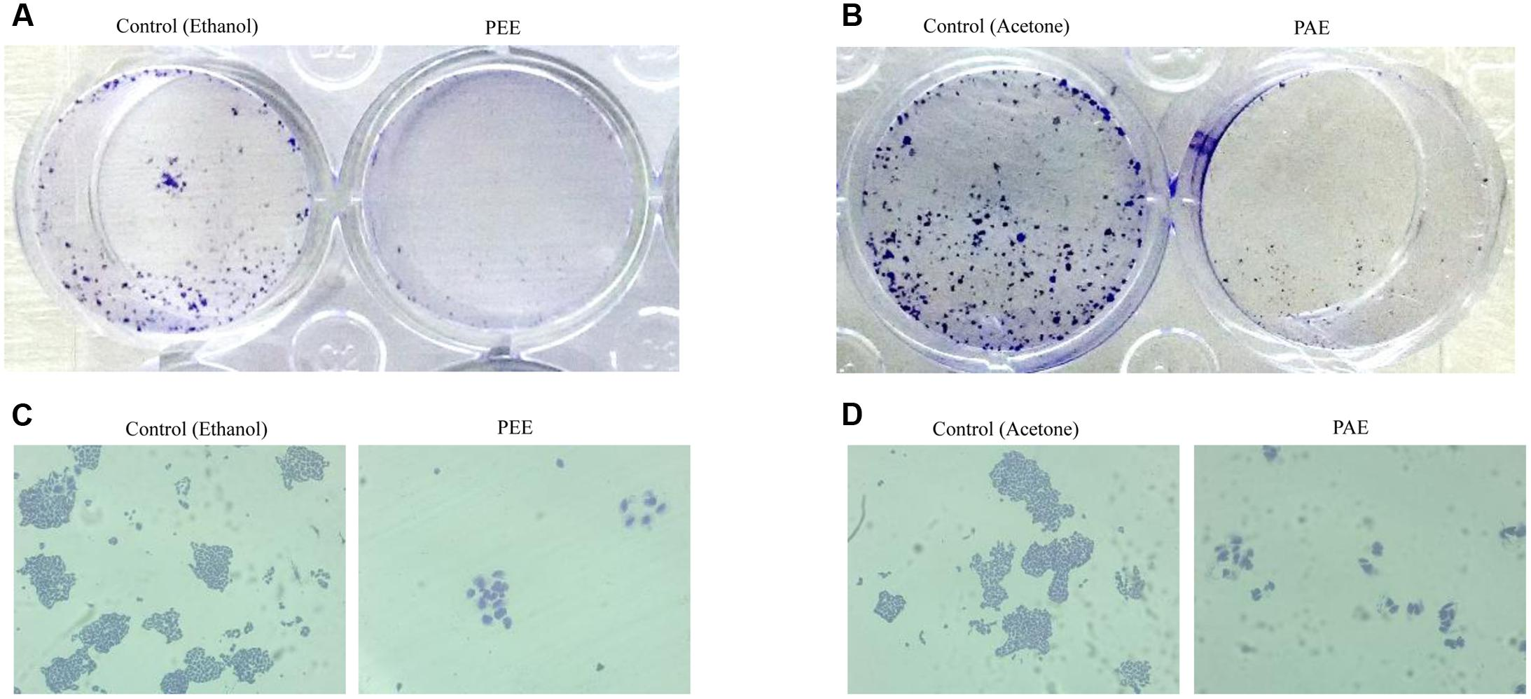 Frontiers | Colocynth Extracts Prevent Epithelial to