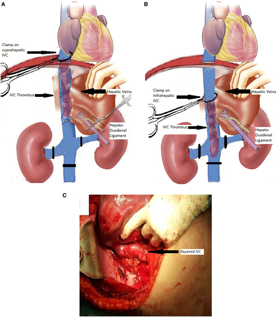 Frontiers   Technical Intraoperative Maneuvers for the Management of ...