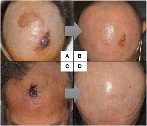 Frontiers Cutaneous Angiosarcoma The Possibility Of New