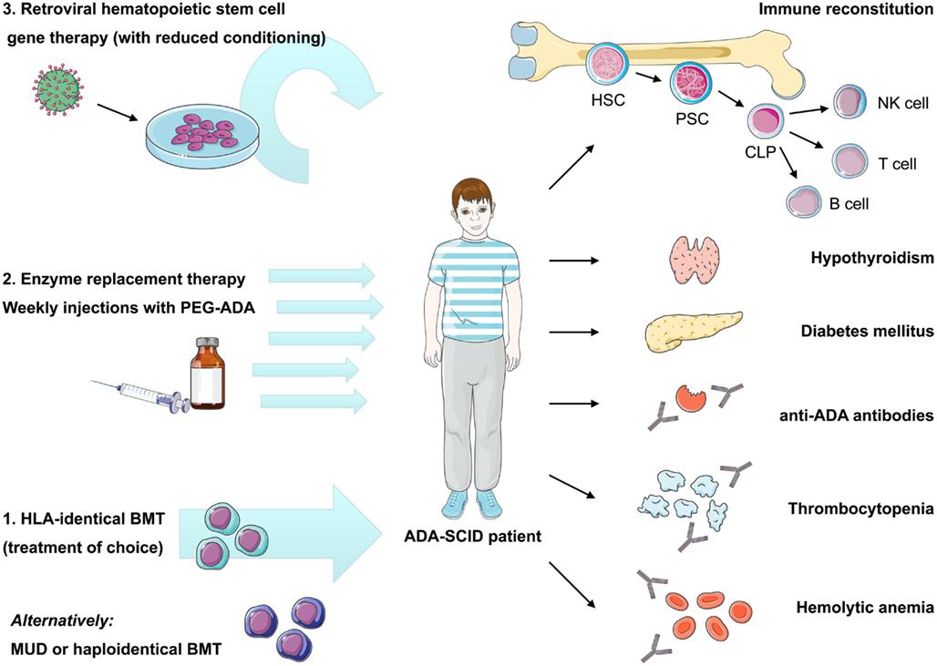 frontiers autoimmune dysregulation and purine metabolism in
