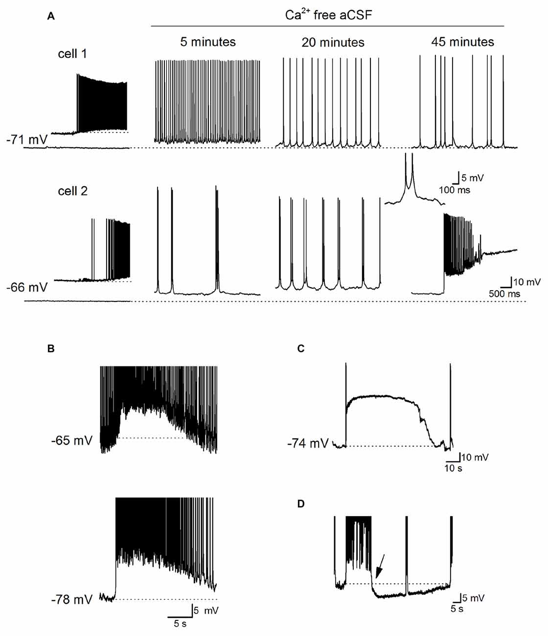 Frontiers Reducing Extracellular Ca2 Induces Adenosine Release Ac Circuit With Dependent Voltage And Current Sources Physics Forums