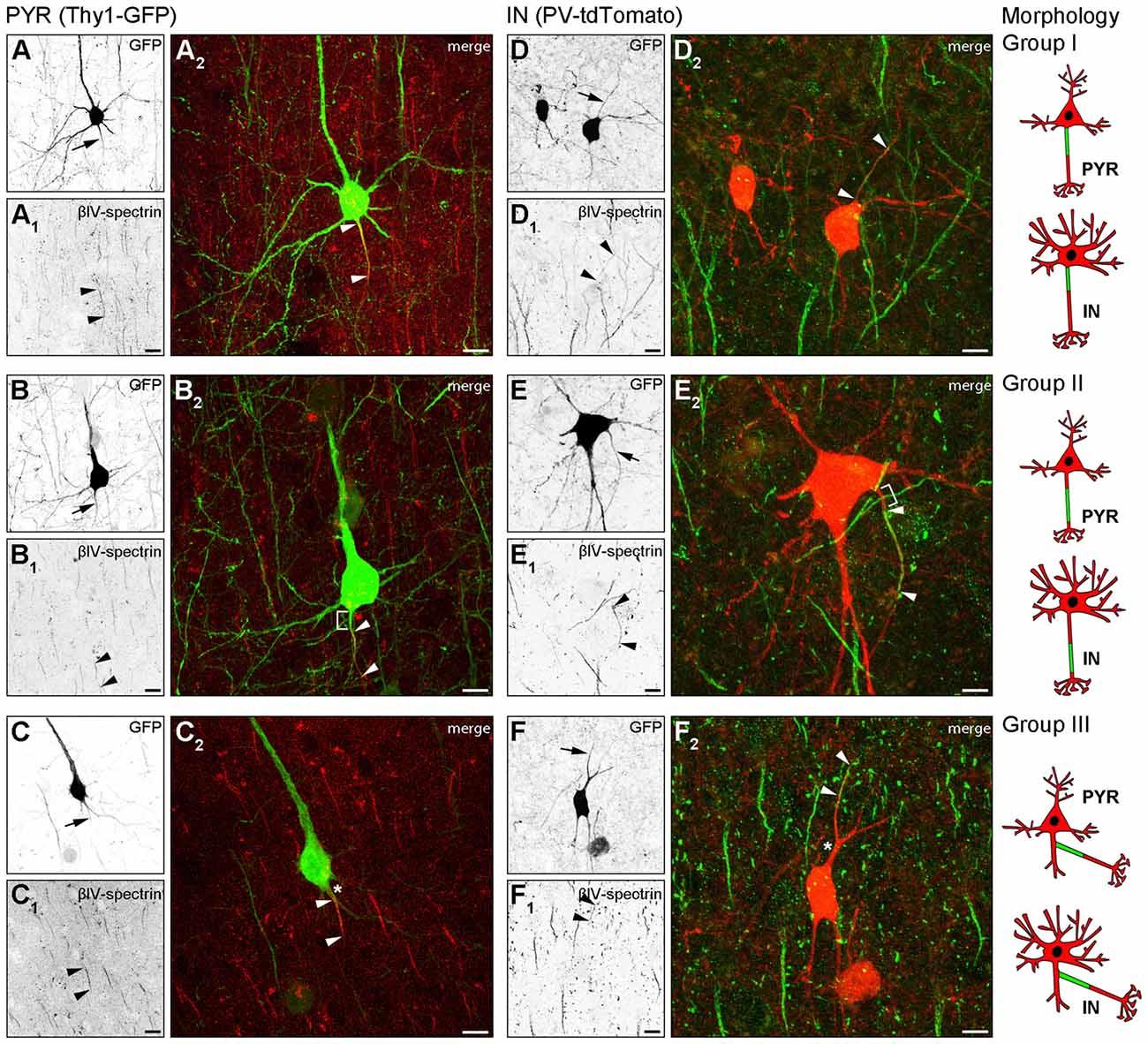 Frontiers   Heterogeneity of the Axon Initial Segment in