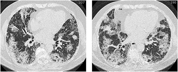 Frontiers Acute Exacerbation In Interstitial Lung