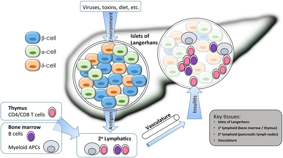 genes susceptibles a la diabetes tipo 1