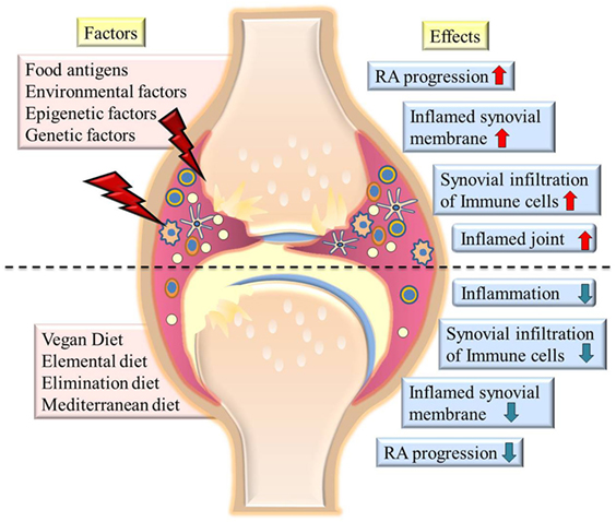 Frontiers Managing Rheumatoid Arthritis With Dietary Interventions Nutrition
