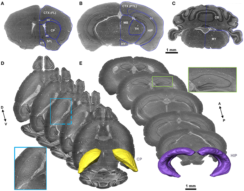 the mouse brain in stereotaxic coordinates pdf