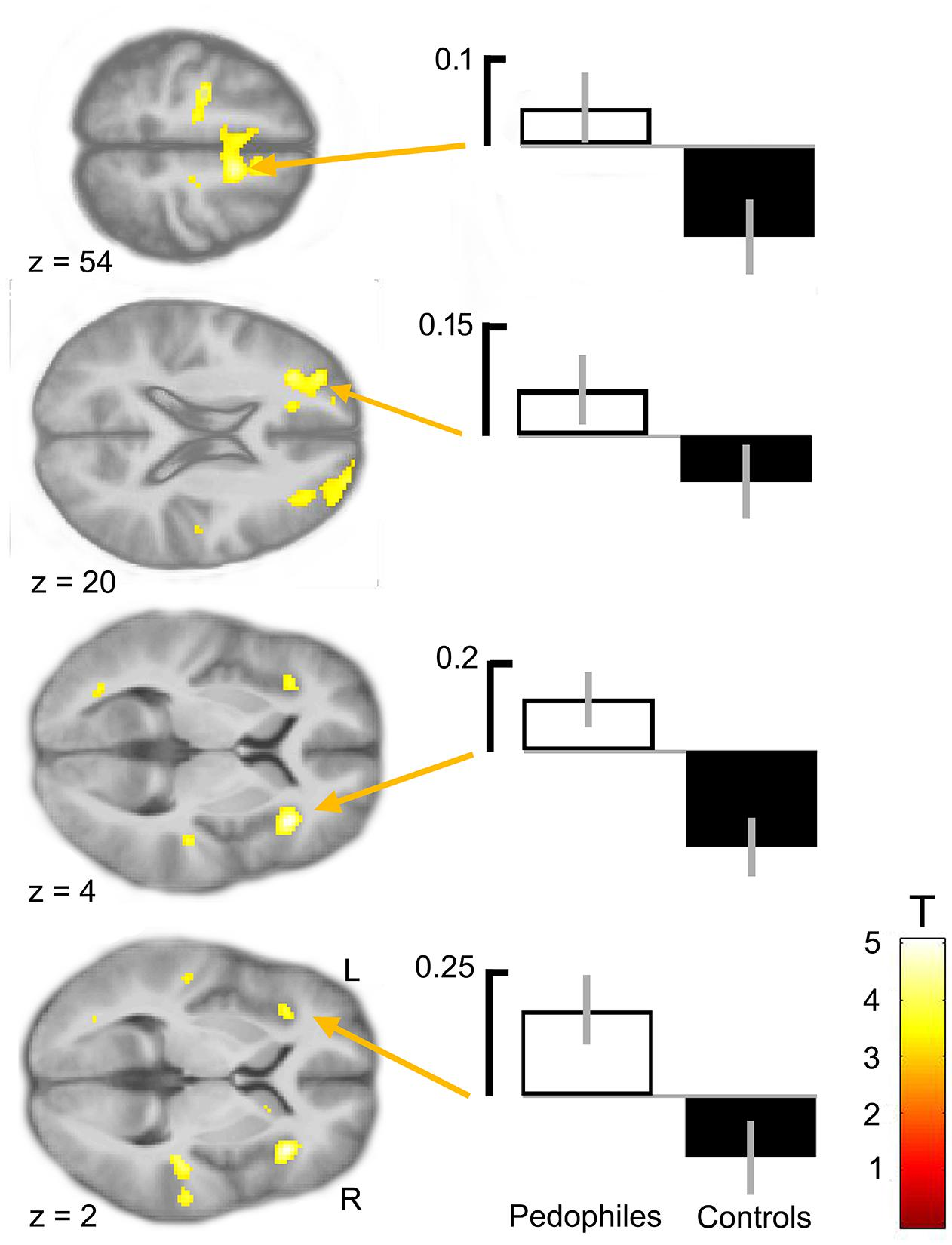 Frontiers | Decoding Pedophilia: Increased Anterior Insula Response
