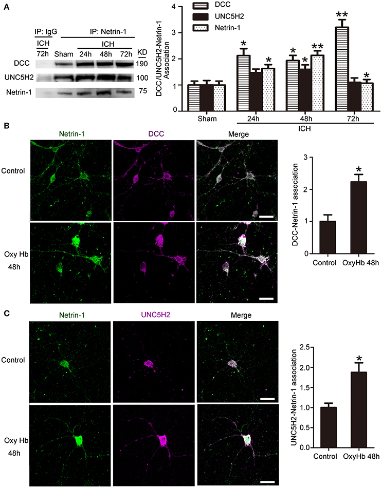 Frontiers | Neuroprotection Exerted by Netrin-1 and Kinesin Motor