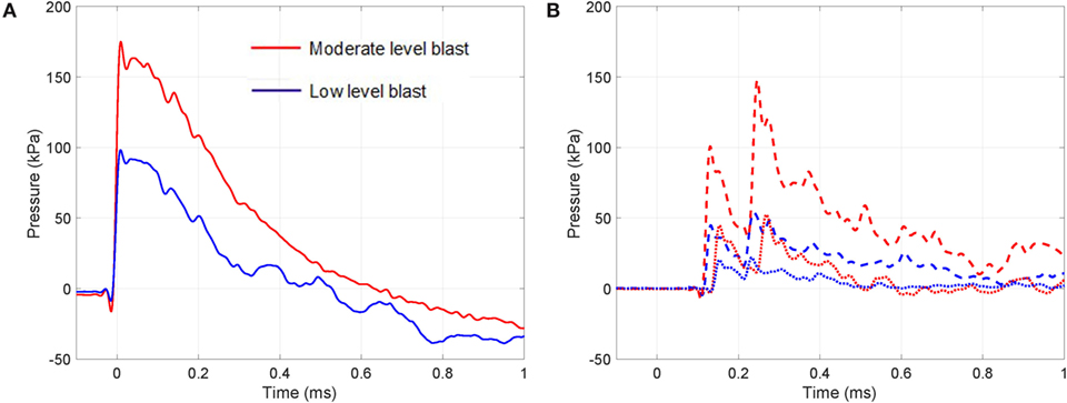 Frontiers | Microstructural Consequences of Blast Lung