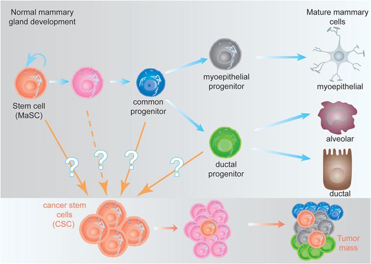 adenocarcinoma de próstata intraductal lo que significa