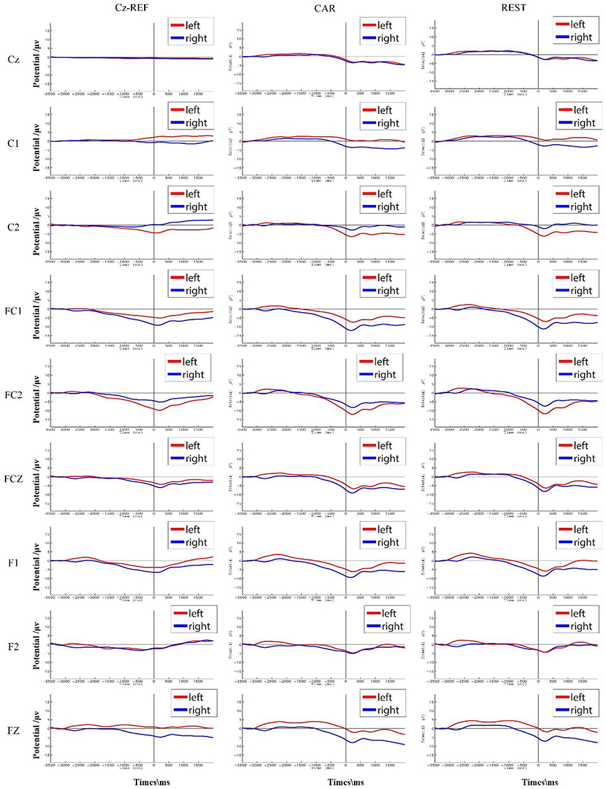 Frontiers | How Electroencephalogram Reference Influences