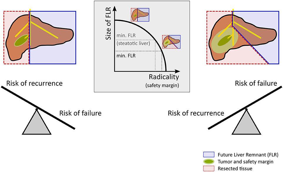 Frontiers | Computational Modeling in Liver Surgery | Physiology
