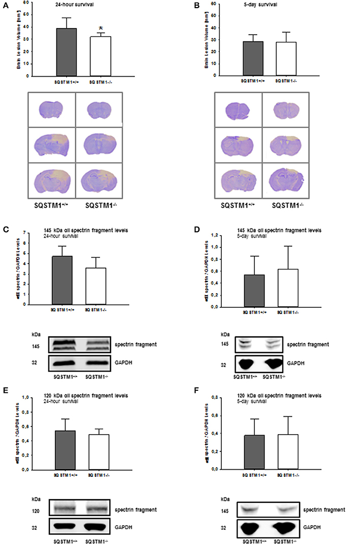 Frontiers | Sequestosome 1 Deficiency Delays, but Does Not Prevent