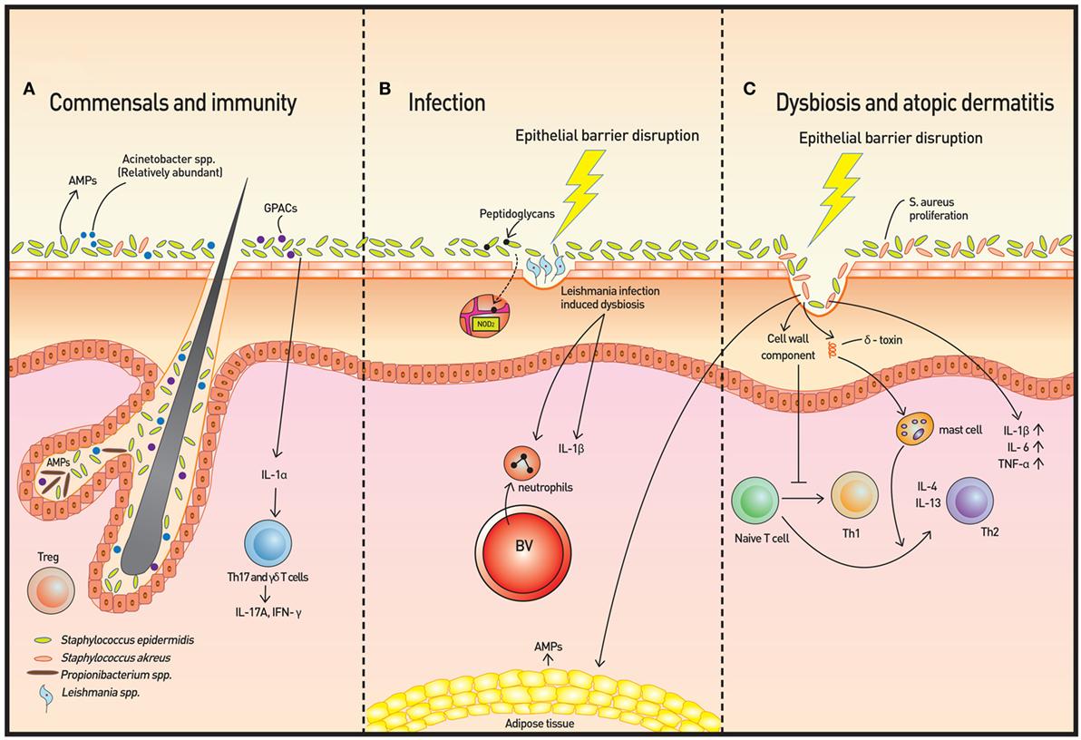 măsurând calea infecției cu helmint giardiază netratată