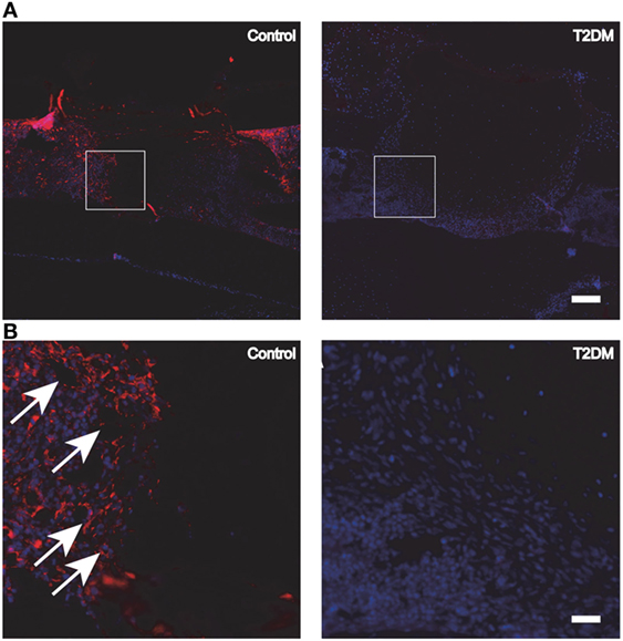 Frontiers | The Impact of Type 2 Diabetes on Bone Fracture Healing