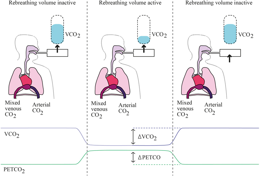 Frontiers | Non-Invasive Monitoring of Cardiac Output in Critical