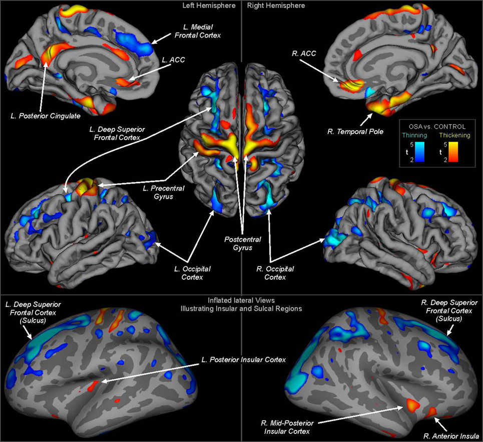 Insular Cortex Alterations In Mouse >> Frontiers Altered Regional Brain Cortical Thickness In Pediatric
